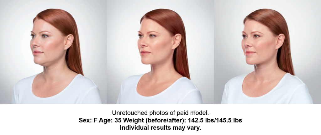 Before, During, After treatments, left front view