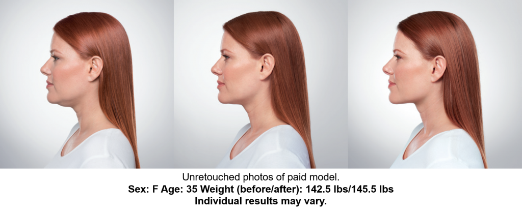 Before, During, After treatments, side profile view